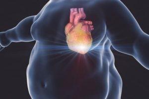 Otyłość i nadwaga - diagnoza i leczenie