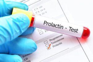 Prolaktyna- pytania i odpowiedzi